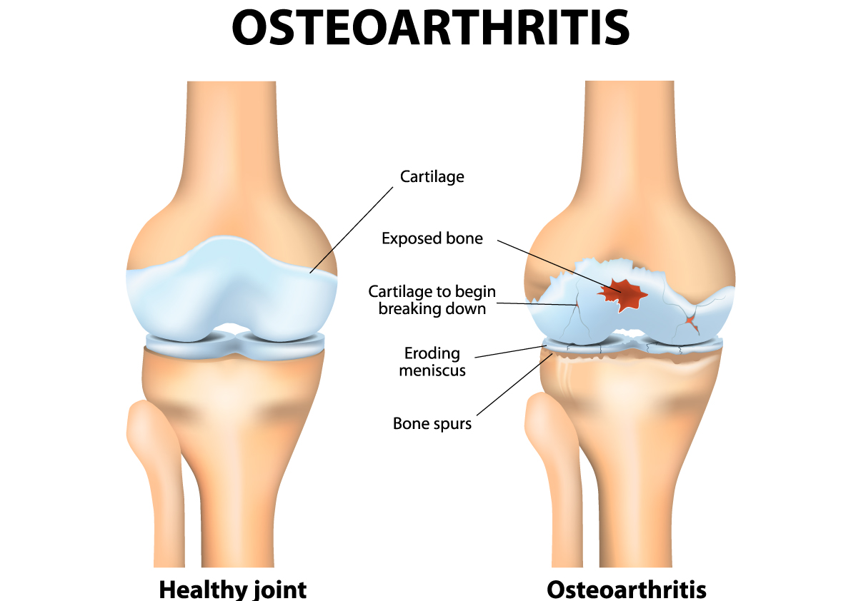 Tips for Managing Lower Limb Osteoarthritis With Exercise