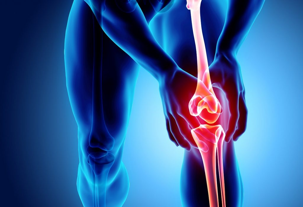 Significant knee pain