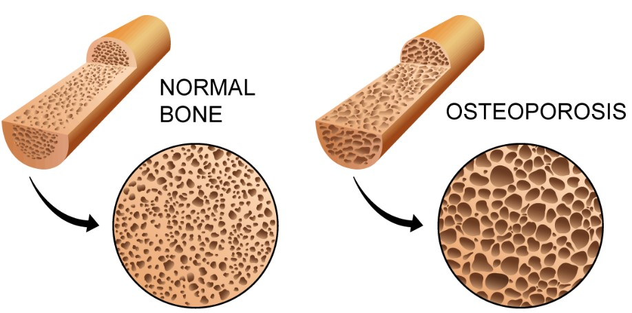 Normal bone and bone with osteoporosis illustration.